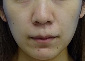 TCB 東京中央美容外科の痩身、メディカルダイエットの症例写真[アフター]