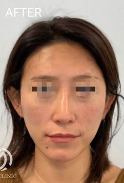GLANZ CLINIC(グランツクリニック)の顔のしわ・たるみの整形(リフトアップ手術)の症例写真[アフター]