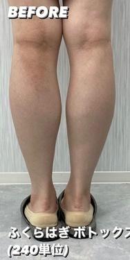 GLANZ CLINIC (グランツクリニック)の痩身、メディカルダイエットの症例写真[ビフォー]