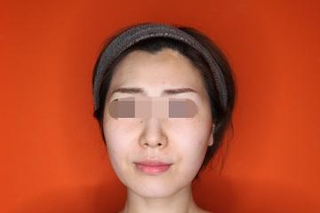 クリニックDo田園調布のシワ・たるみ(照射系リフトアップ治療)の症例写真[アフター]