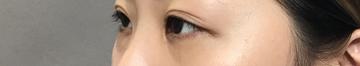 TCB東京中央美容外科 堺院の目元の整形、くま治療の症例写真[ビフォー]