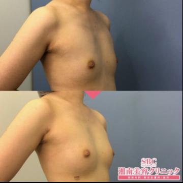 湘南美容クリニック 渋谷院の豊胸手術(胸の整形)の症例写真