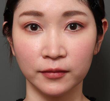 オザキクリニック LUXE新宿の口元・唇の整形の症例写真[ビフォー]