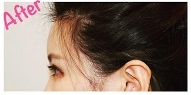 額への脂肪注入の症例写真[アフター]