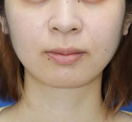オザキクリニック LUXE新宿の口もと、唇の整形の症例写真[ビフォー]
