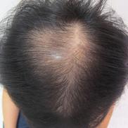ドーズ美容外科の薄毛治療・AGA・発毛の症例写真[ビフォー]