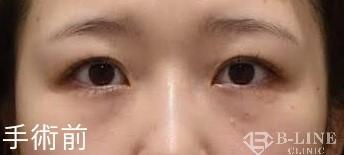 B-LINE CLINICの目元の整形、くま治療の症例写真[ビフォー]