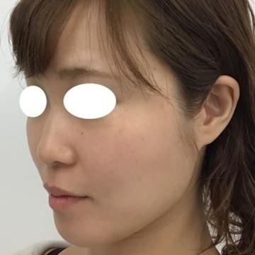 東郷美容形成外科 福岡のシワ・たるみ(照射系リフトアップ治療)の症例写真[アフター]