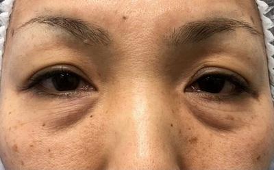 【目の下のクマ治療】目元症例数年間1000件以上の症例写真[ビフォー]