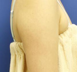 オザキクリニック 目黒祐天寺院のその他の美容皮膚科治療の症例写真[アフター]