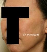 ふくずみ皮フ科形成外科の症例写真[アフター]