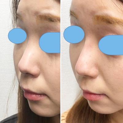 初めての鼻ヒアルロン酸~ビフォーアフター~の症例写真