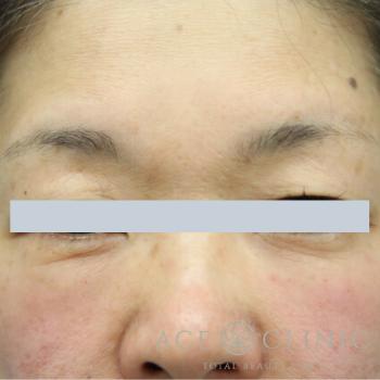 エースクリニックのシワ・たるみ(照射系リフトアップ治療)の症例写真[ビフォー]
