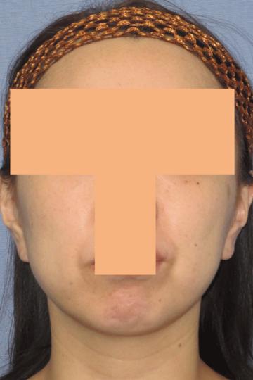 湘南美容クリニック 高崎院の顔のしわ・たるみの整形(リフトアップ手術)の症例写真[ビフォー]