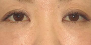 湘南美容クリニック 高崎院の目元の整形、くま治療の症例写真[アフター]