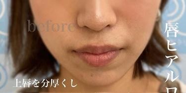 唇ヒアルロン酸の症例写真[ビフォー]