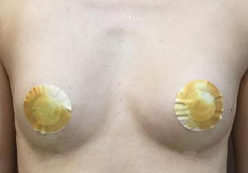 シンシアガーデンクリニックの豊胸手術(胸の整形)の症例写真[アフター]