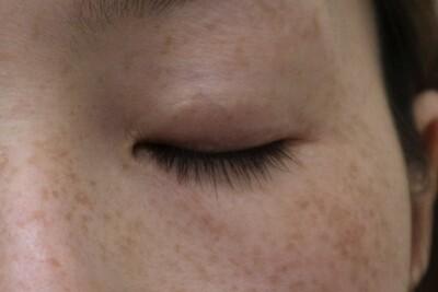 眼瞼下垂(目頭切開)の傷の症例写真[ビフォー]