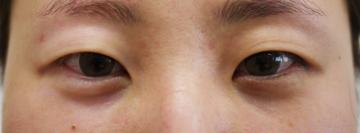 しらさぎ形成クリニックの目・二重の整形の症例写真
