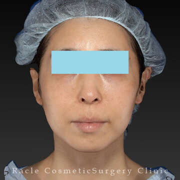 新宿ラクル美容外科クリニックのシワ・たるみ(照射系リフトアップ治療)の症例写真[アフター]