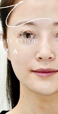 Natural Beauty Clinic GINZA(ナチュラルビューティークリニックギンザ)の顔の整形(輪郭・顎の整形)の症例写真[アフター]