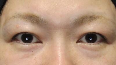 5歳若見え、目の下の切らないクマ取り手術の症例写真[ビフォー]