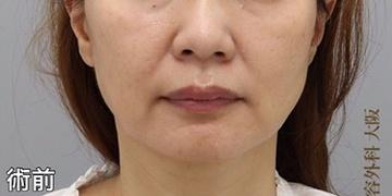 銀座みゆき通り美容外科大阪院の顔のしわ・たるみの整形(リフトアップ手術)の症例写真[ビフォー]