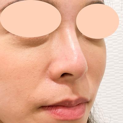 【鼻根~鼻先まで注入】ジャスミンノーズ(30代女性)の症例写真[アフター]