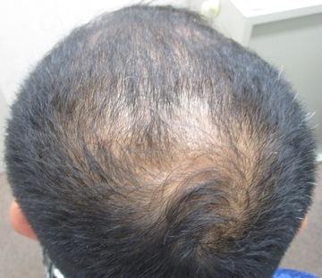 浜松中央クリニックの薄毛治療の症例写真[ビフォー]