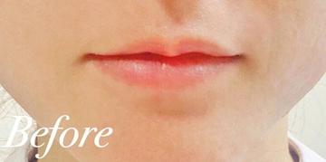 表参道スキンクリニックの口元・唇の整形の症例写真[ビフォー]