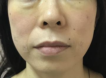 N クリニックの顔のしわ・たるみの整形(リフトアップ手術)の症例写真[アフター]