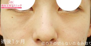 湘南美容クリニック姫路院の目元の整形、くま治療の症例写真[アフター]