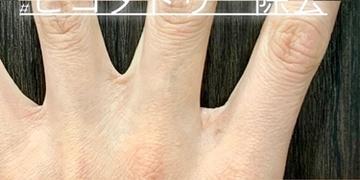 ルラ美容クリニック 高田馬場院のタトゥー除去(刺青・入れ墨を消す治療)の症例写真[アフター]