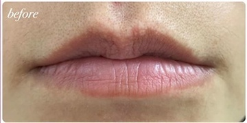 かなえデンタルクリニックの口もと、唇の整形の症例写真[ビフォー]