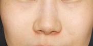 SELECT CLINIC(セレクトクリニック)の症例写真[アフター]