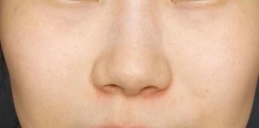 ピコスポットによるシミ治療の症例写真[アフター]