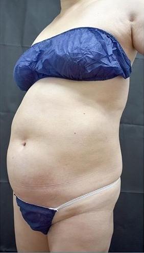 ジョウクリニックの脂肪吸引の症例写真[ビフォー]