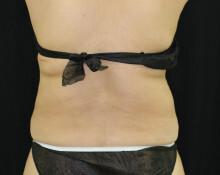 の痩身、メディカルダイエットの症例写真[アフター]