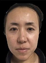 とみ皮膚科クリニックの顔のしわ・たるみの整形(リフトアップ手術)の症例写真[ビフォー]