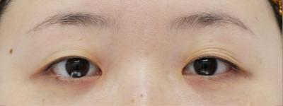【クイックコスメティークダブル】術前/術後1ヶ月の症例写真[ビフォー]