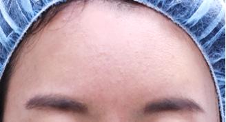 心斎橋コムロ美容外科クリニックの顔の整形(輪郭・顎の整形)の症例写真[ビフォー]