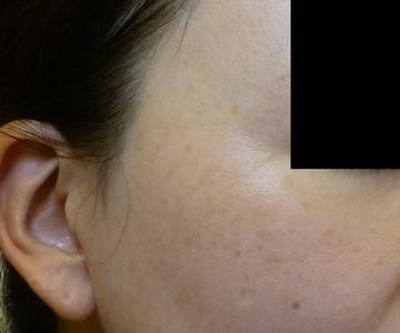 さやか美容クリニック・町田のシミ取り・肝斑・毛穴治療の症例写真[アフター]