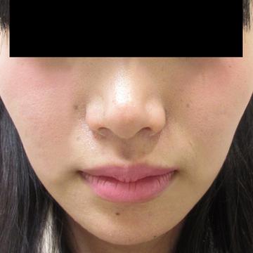 ドーズ美容外科の顔の整形(輪郭・顎の整形)の症例写真[アフター]