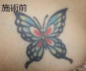 エースクリニックのタトゥー除去(刺青・入れ墨を消す治療)の症例写真