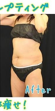 Theoryクリニック (セオリークリニック)の痩身、メディカルダイエットの症例写真[アフター]