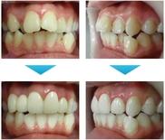 ザ・ホワイトデンタルクリニックの矯正歯科の症例写真