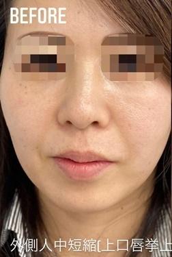 GLANZ CLINIC (グランツクリニック)の口元・唇の整形の症例写真[ビフォー]