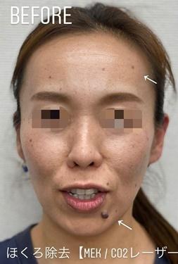 GLANZ CLINIC (グランツクリニック)のほくろ除去・あざ治療・イボ治療の症例写真[ビフォー]