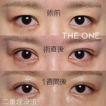 THE ONE.の目・二重整形の症例写真