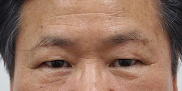 静岡美容外科橋本クリニックの目元の整形、くま治療の症例写真[アフター]